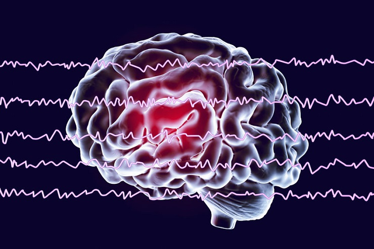 EEG Electroencephalogram, brain wave in awake state with mental activity