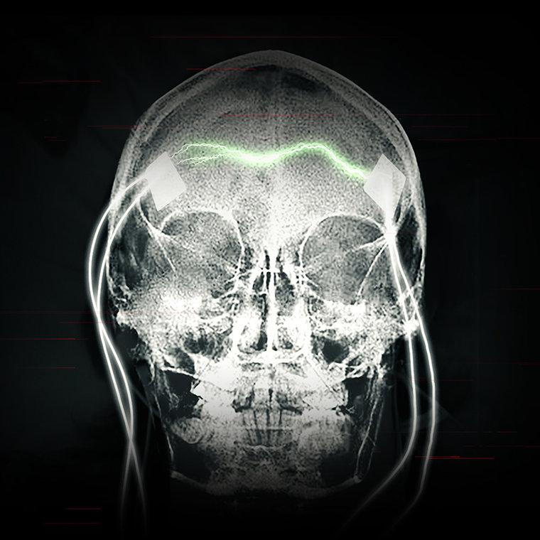 ect-documentary-booklet-skull_en